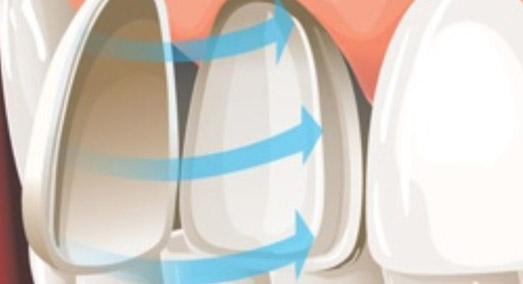 4 Questions on Dental Veneers
