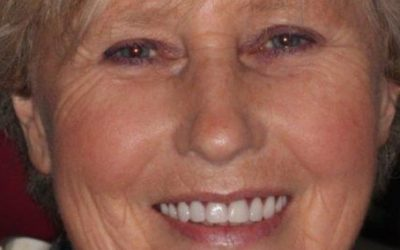 Meet Sandra – one of our happy All on 4 patients