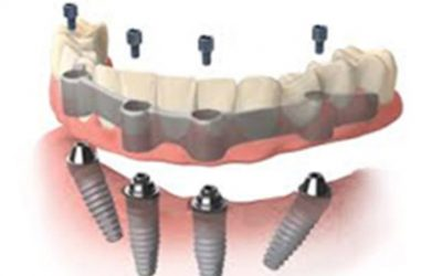 Are implants better than dentures?