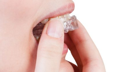 Why is bruxism bad for your teeth?