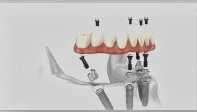 How Many Implants are Required for Full Mouth Dental Implants?