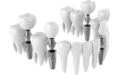 Are Dental Implants Safe?